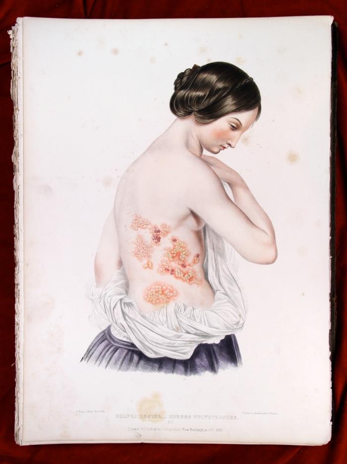 Herpes zoster (gordelroos)