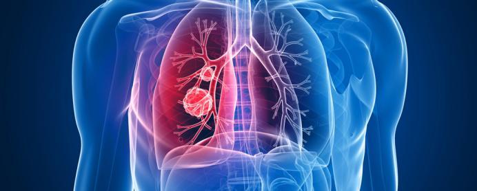 1000x399-0-175-692x278-lung-cancer