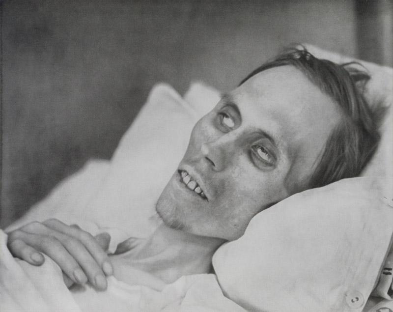 Jonge stervende man met dikkedarmkanker