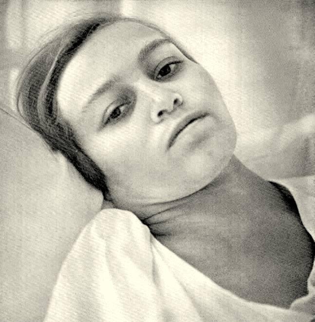Vrouw met ziekte van Hodgkin met ernstige dyspnoe